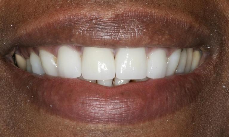 Front-Incisors-Porcelain-Veneers-After-Image
