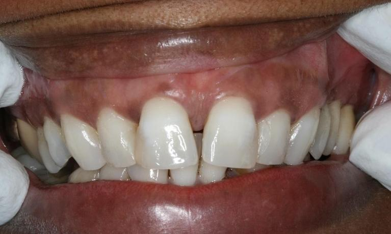 Front-Incisors-Porcelain-Veneers-Before-Image